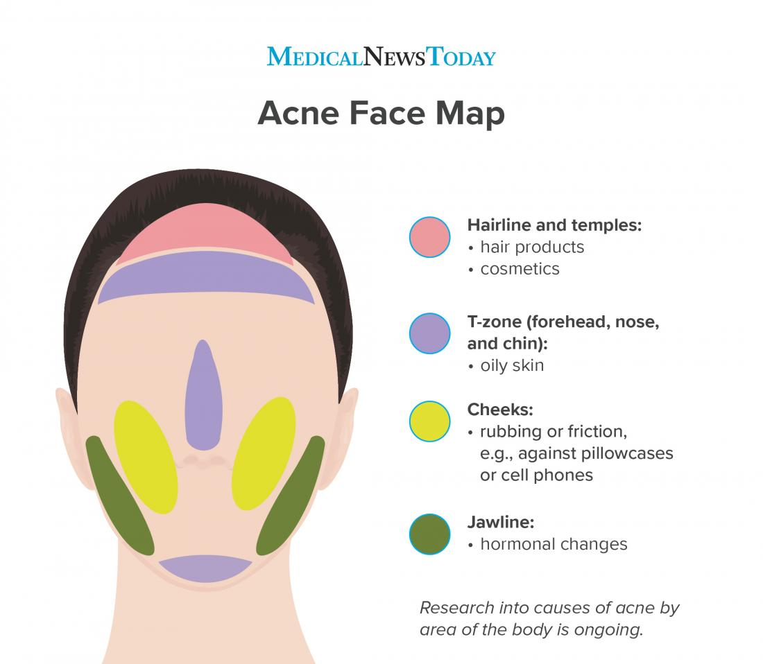 Face Mapping Acne