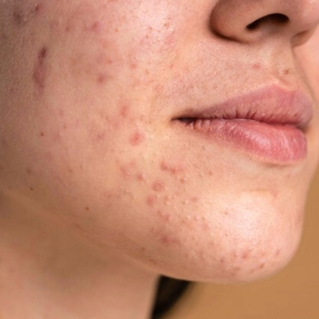 Women With Acne